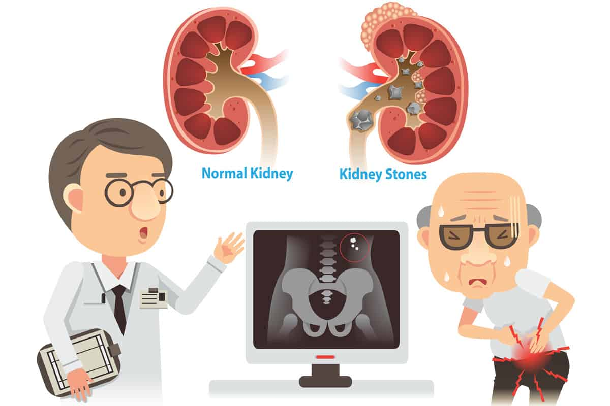 Are Meal Replacement Shakes Bad for Your Kidneys